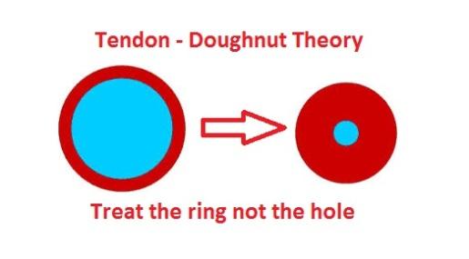 tendon doughnut
