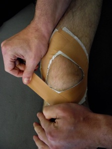Diamond Patella tape