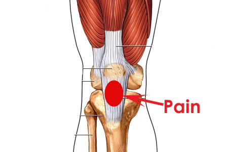 The Knee: Patella Tendinopathy