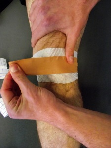 Medial patella tape