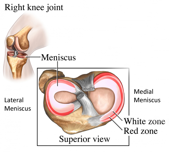 The Knee Meniscal Injuries