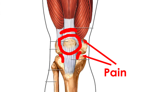 The Knee: Patellofemoral pain