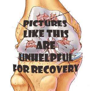 knee-arthritis658 copy